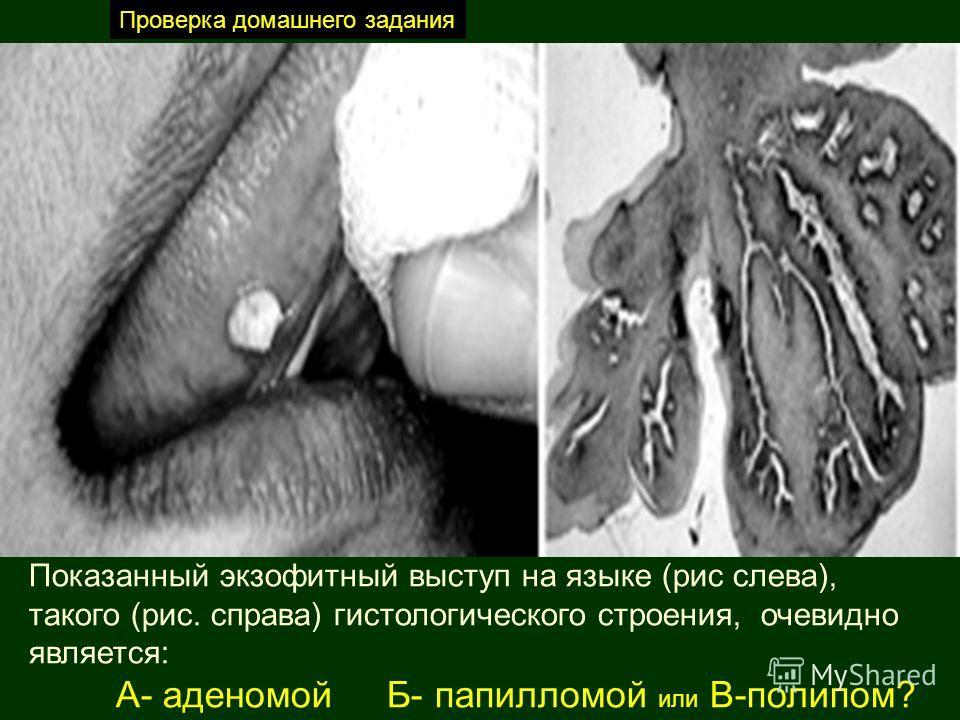 Показанный экзофитный выступ на языке (рис слева), такого (рис. справа) гистологического строения, очевидно является: А- аденомой Б- папилломой или В-полипом? Проверка домашнего задания