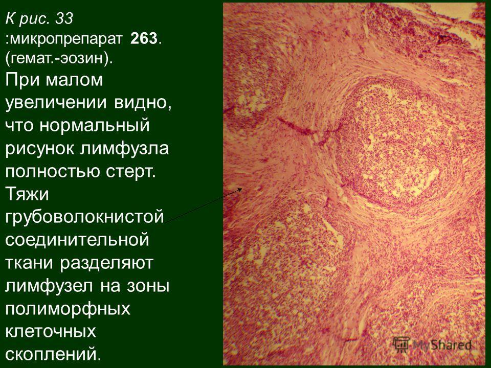 К рис. 33 :микропрепарат 263. (гемат.-эозин). При малом увеличении видно, что нормальный рисунок лимфузла полностью стерт. Тяжи грубоволокнистой соединительной ткани разделяют лимфузел на зоны полиморфных клеточных скоплений.