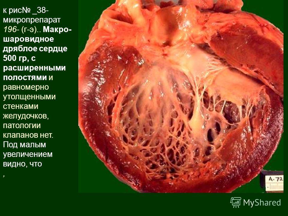 к рис _38- микропрепарат 196- (г-э).. Макро- шаровидное дряблое сердце 500 гр, с расширенными полостями и равномерно утолщенными стенками желудочков, патологии клапанов нет. Под малым увеличением видно, что,