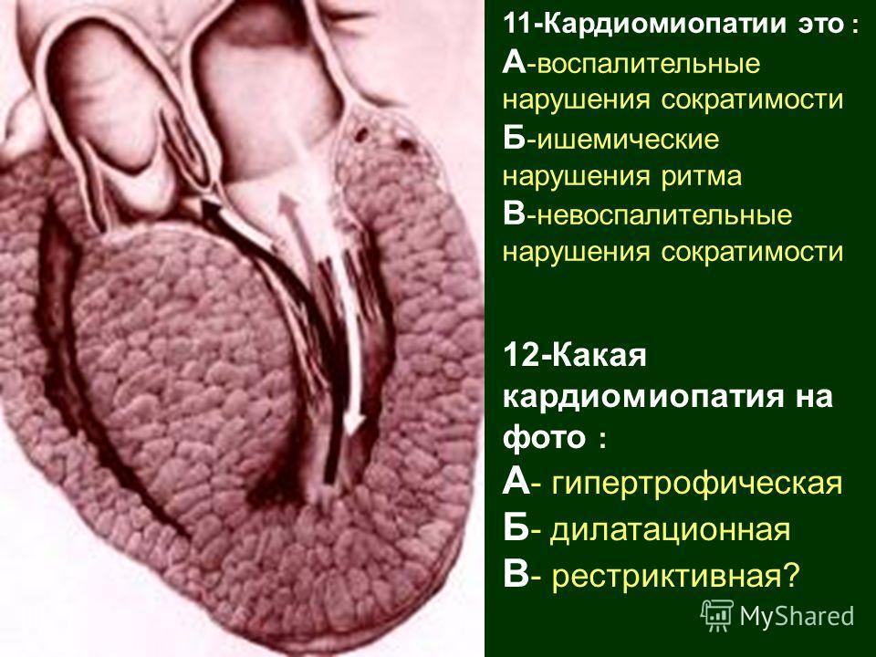 11-Кардиомиопатии это : А -воспалительные нарушения сократимости Б -ишемические нарушения ритма В -невоспалительные нарушения сократимости 12-Какая кардиомиопатия на фото : А - гипертрофическая Б - дилатационная В - рестриктивная?