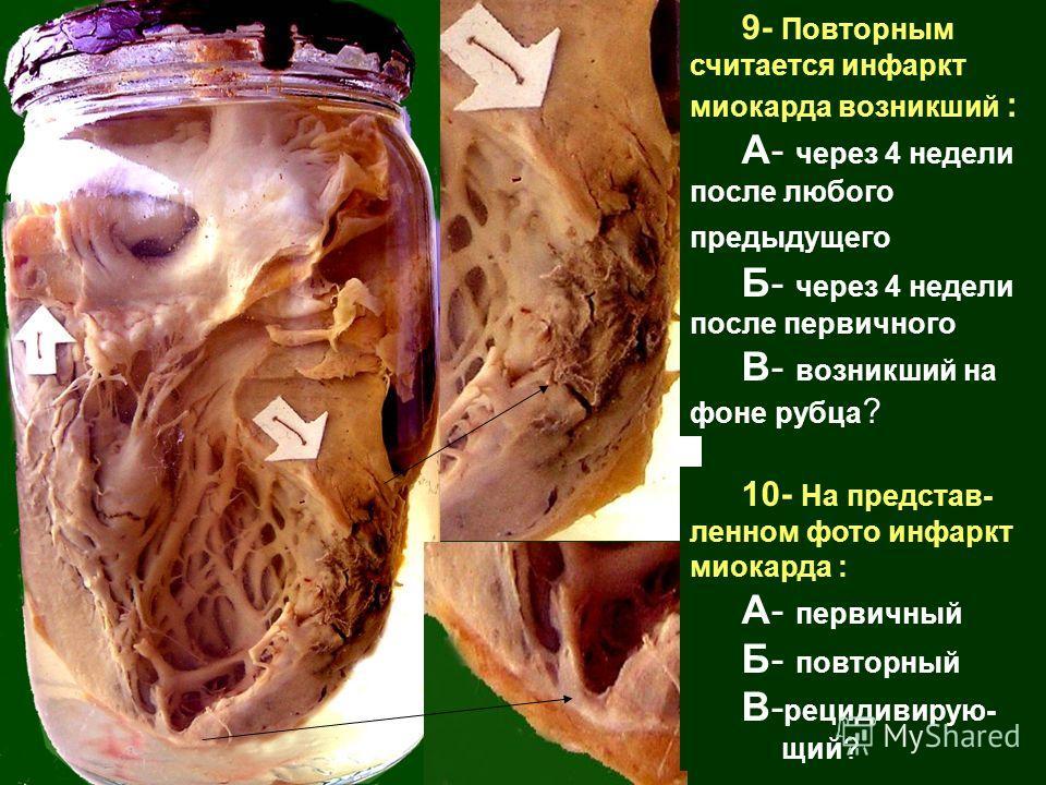 9- Повторным считается инфаркт миокарда возникший : А- через 4 недели после любого предыдущего Б- через 4 недели после первичного В- возникший на фоне рубца ? 10- На представ- ленном фото инфаркт миокарда : А- первичный Б- повторный В- рецидивирую- щ