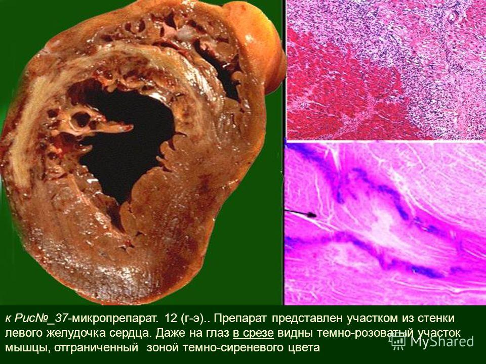 к Рис_37-микропрепарат. 12 (г-э).. Препарат представлен участком из стенки левого желудочка сердца. Даже на глаз в срезе видны темно-розоватый участок мышцы, отграниченный зоной темно-сиреневого цвета