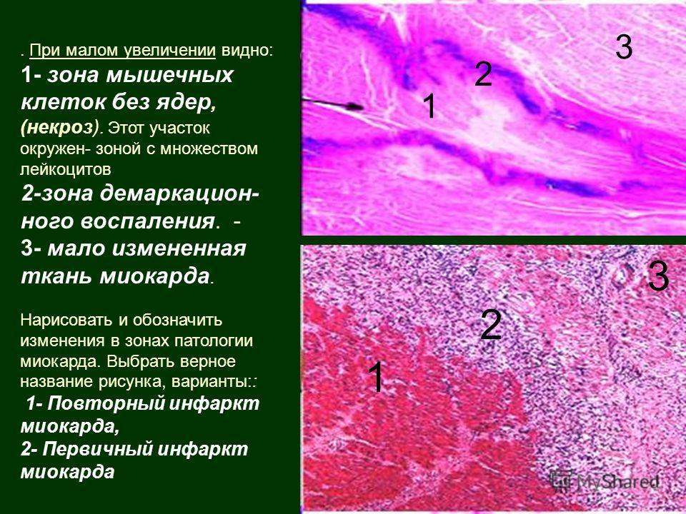. При малом увеличении видно: 1- зона мышечных клеток без ядер, (некроз). Этот участок окружен- зоной с множеством лейкоцитов 2-зона демаркацион- ного воспаления. - 3- мало измененная ткань миокарда. Нарисовать и обозначить изменения в зонах патологи