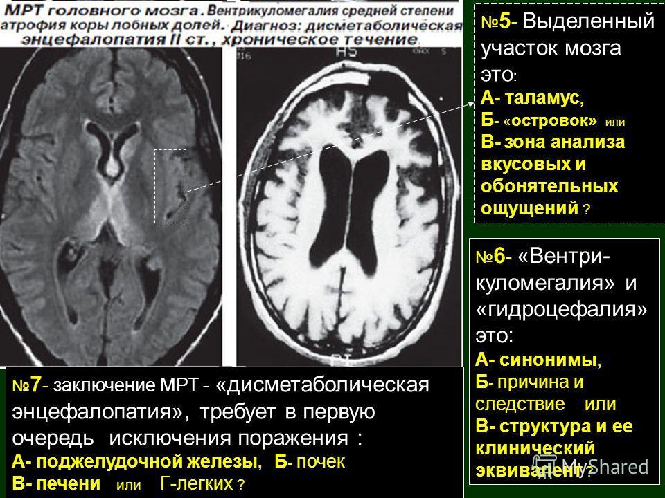 5 - Выделенный участок мозга это : А- таламус, Б - « островок» или В- зона анализа вкусовых и обонятельных ощущений ? 6 - «Вентри- куломегалия» и «гидроцефалия» это: А- синонимы, Б - причина и следствие или В- структура и ее клинический эквивалент ?
