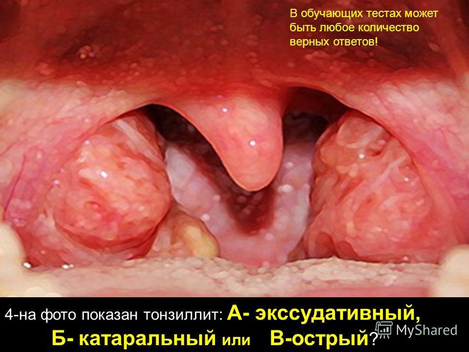 4-на фото показан тонзиллит: А- экссудативный, Б- катаральный или В-острый ? В обучающих тестах может быть любое количество верных ответов!