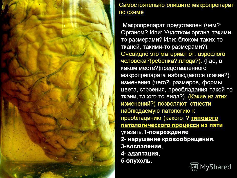 Самостоятельно опишите макропрепарат по схеме Макропрепарат представлен (чем?: Органом? Или: Участком органа такими- то размерами? Или: блоком таких-то тканей, такими-то размерами?). Очевидно это материал от: взрослого человека?(ребенка?,плода?). (Гд