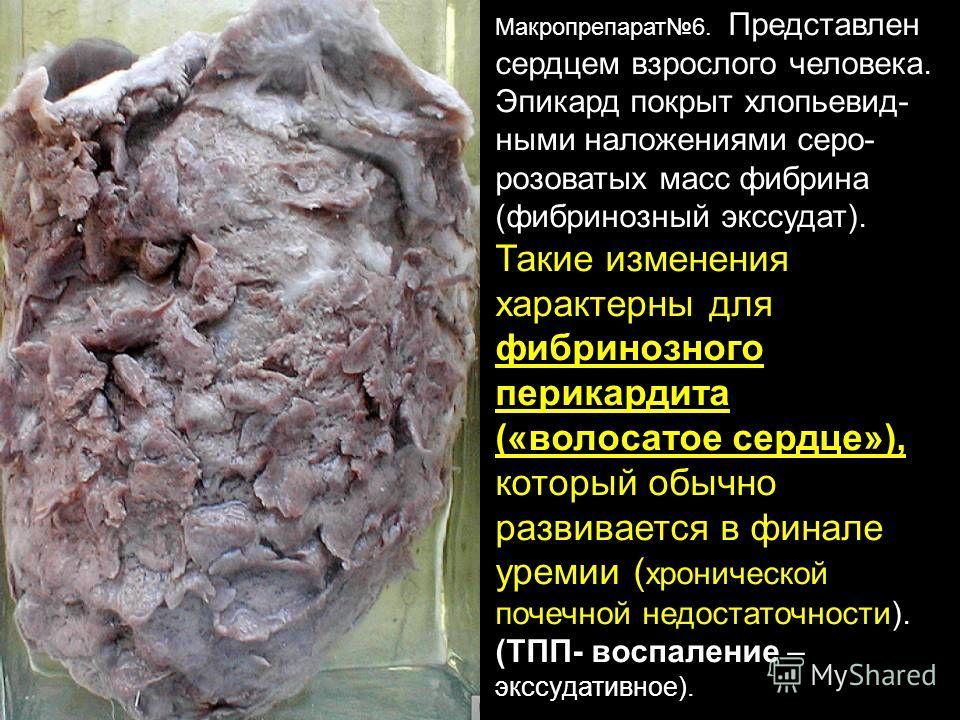Макропрепарат6. Представлен сердцем взрослого человека. Эпикард покрыт хлопьевид- ными наложениями серо- розоватых масс фибрина (фибринозный экссудат). Такие изменения характерны для фибринозного перикардита («волосатое сердце»), который обычно разви