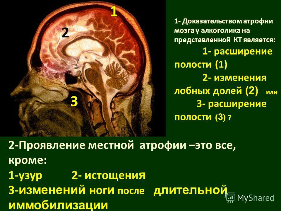 2-Проявление местной атрофии –это все, кроме: 1-узур 2- истощени я 3- изменений ног и после д лительной иммобилизации 1- Доказательством атрофии мозга у алкоголика на представленной КТ является: 1- расширение полости (1) 2- изменения лобных долей (2)