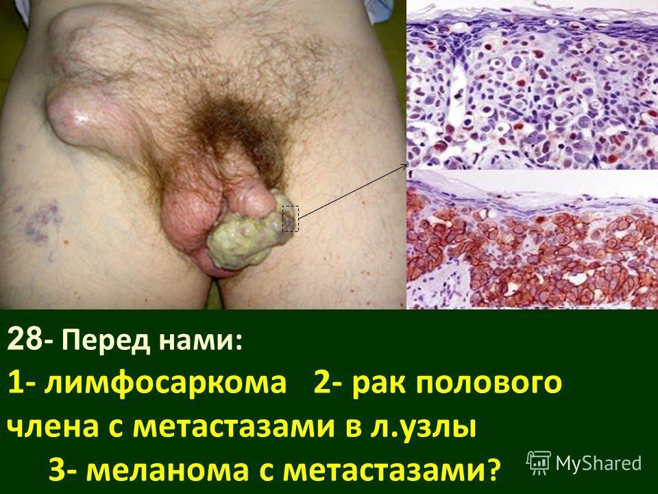 Лимфосаркома фото