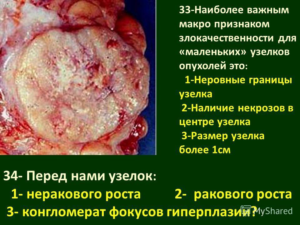 33-Наиболее важным макро признаком злокачественности для «маленьких» узелков опухолей это : 1-Неровные границы узелка 2-Наличие некрозов в центре узелка 3-Размер узелка более 1см 34- Перед нами узелок : 1- неракового роста 2- ракового роста 3- конгло