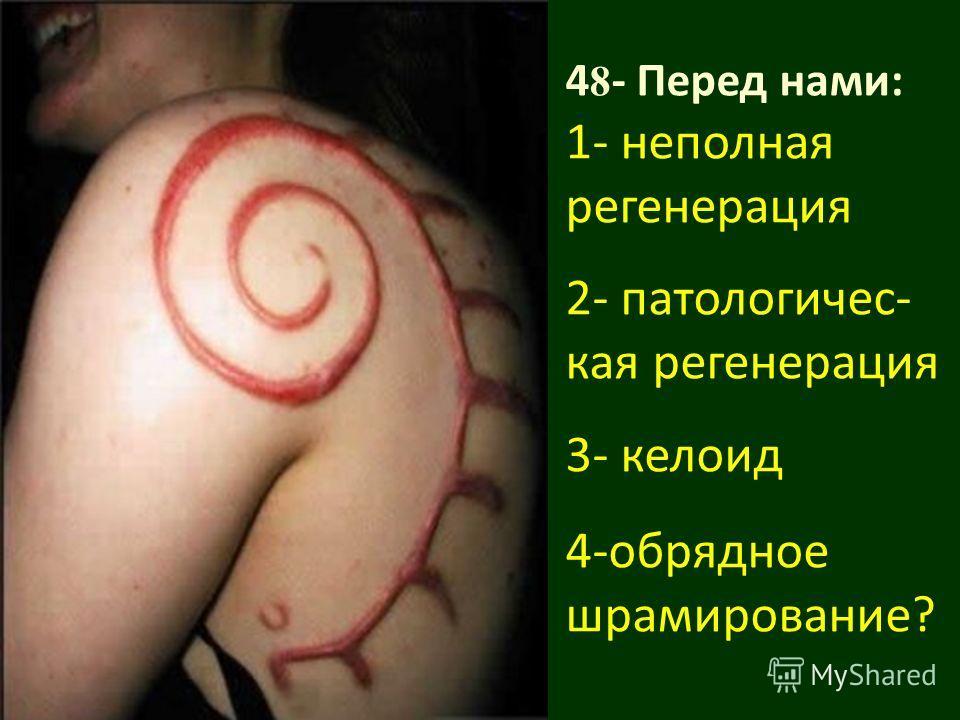 4 8 - Перед нами: 1- неполная регенерация 2- патологичес- кая регенерация 3- келоид 4-обрядное шрамирование?