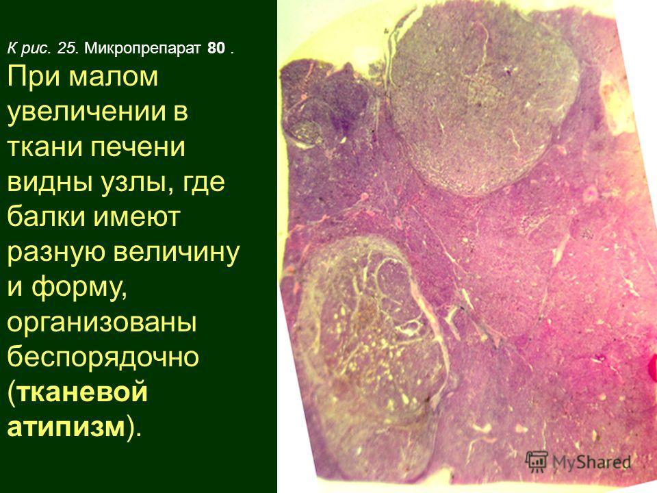 К рис. 25. Микропрепарат 80. При малом увеличении в ткани печени видны узлы, где балки имеют разную величину и форму, организованы беспорядочно (тканевой атипизм).