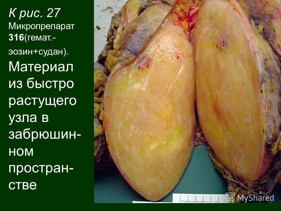 К рис. 27 Микропрепарат 316(гемат.- эозин+судан). Материал из быстро растущего узла в забрюшин- ном простран- стве