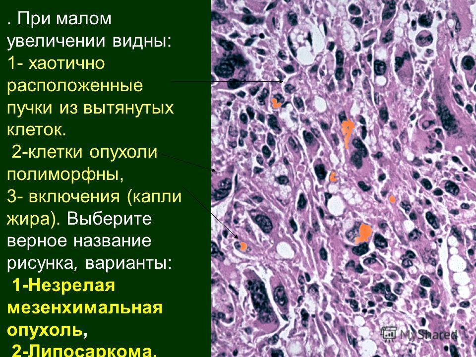 . При малом увеличении видны: 1- хаотично расположенные пучки из вытянутых клеток. 2-клетки опухоли полиморфны, 3- включения (капли жира). Выберите верное название рисунка, варианты: 1-Незрелая мезенхимальная опухоль, 2-Липосаркома.