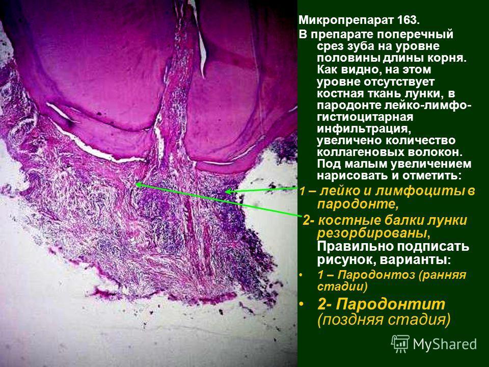 Микропрепарат 163. В препарате поперечный срез зуба на уровне половины длины корня. Как видно, на этом уровне отсутствует костная ткань лунки, в пародонте лейко-лимфо- гистиоцитарная инфильтрация, увеличено количество коллагеновых волокон. Под малым