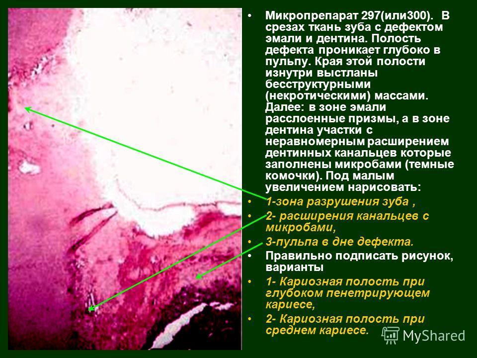 Микропрепарат 297(или300). В срезах ткань зуба с дефектом эмали и дентина. Полость дефекта проникает глубоко в пульпу. Края этой полости изнутри выстланы бесструктурными (некротическими) массами. Далее: в зоне эмали расслоенные призмы, а в зоне денти