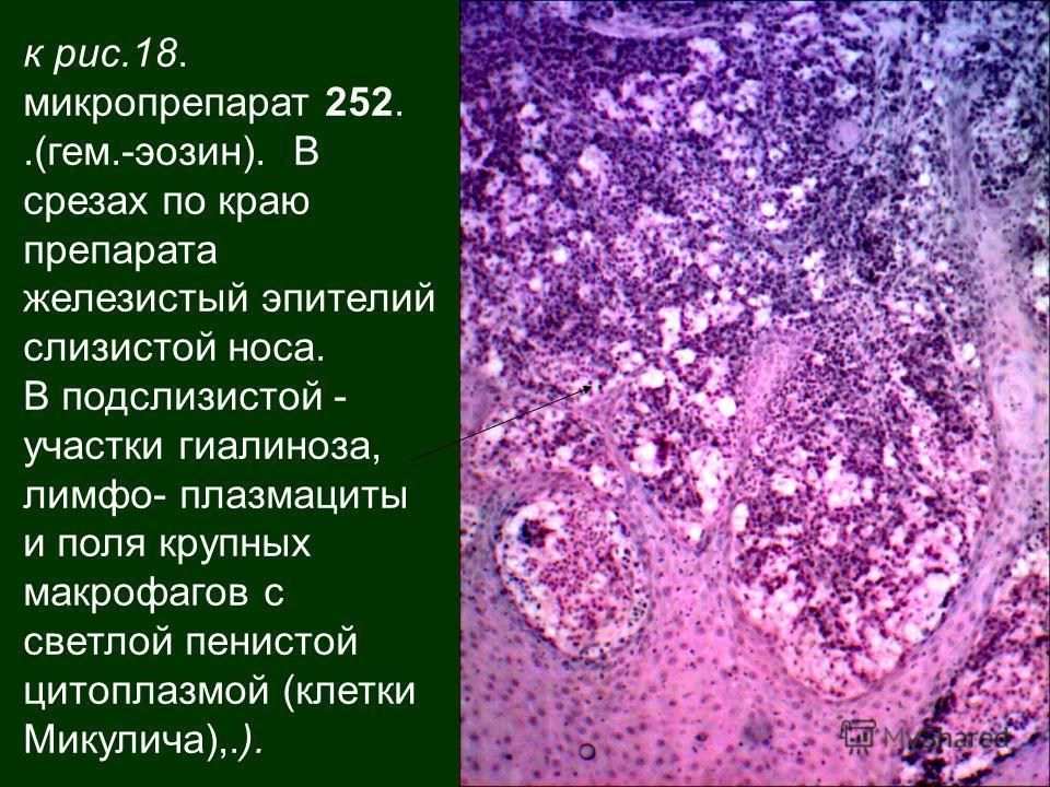 к рис.18. микропрепарат 252..(гем.-эозин). В срезах по краю препарата железистый эпителий слизистой носа. В подслизистой - участки гиалиноза, лимфо- плазмациты и поля крупных макрофагов с светлой пенистой цитоплазмой (клетки Микулича),.).
