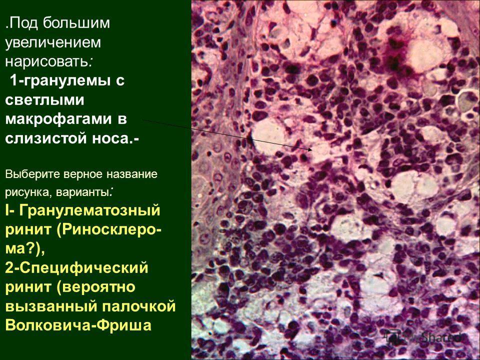 .Под большим увеличением нарисовать: 1-гранулемы с светлыми макрофагами в слизистой носа.- Выберите верное название рисунка, варианты : I- Гранулематозный ринит (Риносклеро- ма?), 2-Специфический ринит (вероятно вызванный палочкой Волковича-Фриша