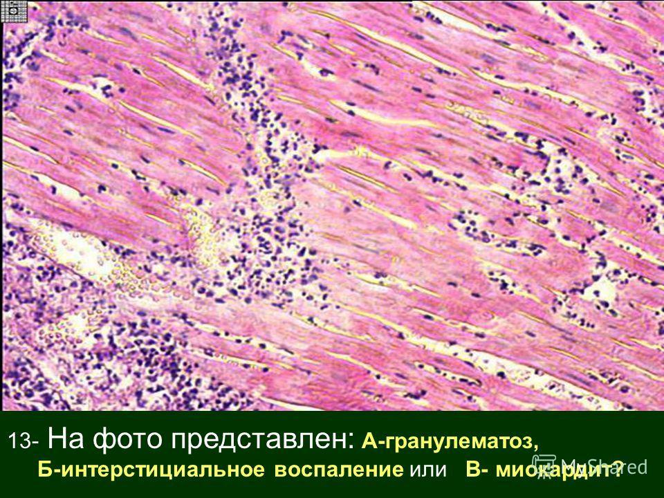 13- На фото представлен: А-гранулематоз, Б-интерстициальное воспаление или В- миокардит?