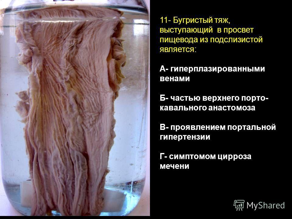 11- Бугристый тяж, выступающий в просвет пищевода из подслизистой является: А- гиперплазированными венами Б- частью верхнего порто- кавального анастомоза В- проявлением портальной гипертензии Г- симптомом цирроза мечени