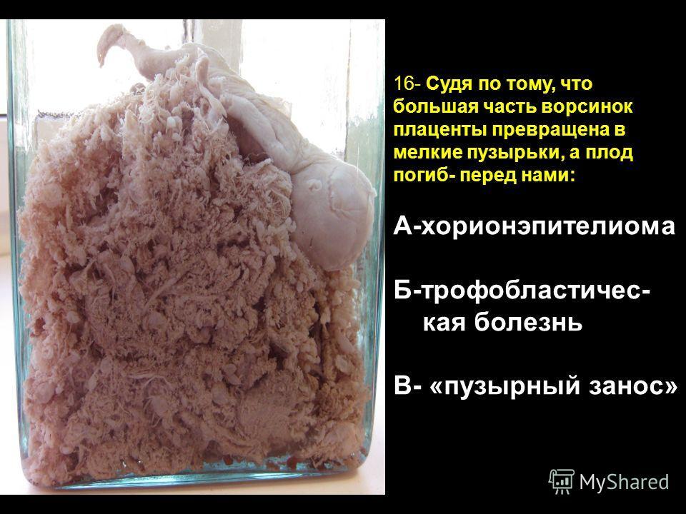 Хорионэпителиома фото