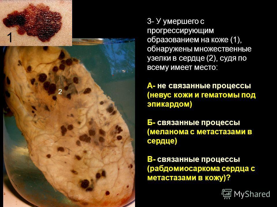 3- У умершего с прогрессирующим образованием на коже (1), обнаружены множественные узелки в сердце (2), судя по всему имеет место: А- не связанные процессы (невус кожи и гематомы под эпикардом) Б- связанные процессы (меланома с метастазами в сердце)