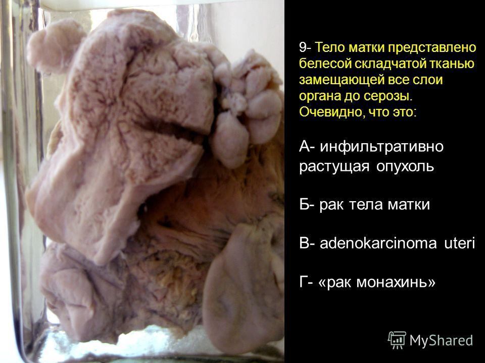 9- Тело матки представлено белесой складчатой тканью замещающей все слои органа до серозы. Очевидно, что это: А- инфильтративно растущая опухоль Б- рак тела матки В- adenokarcinoma uteri Г- «рак монахинь»