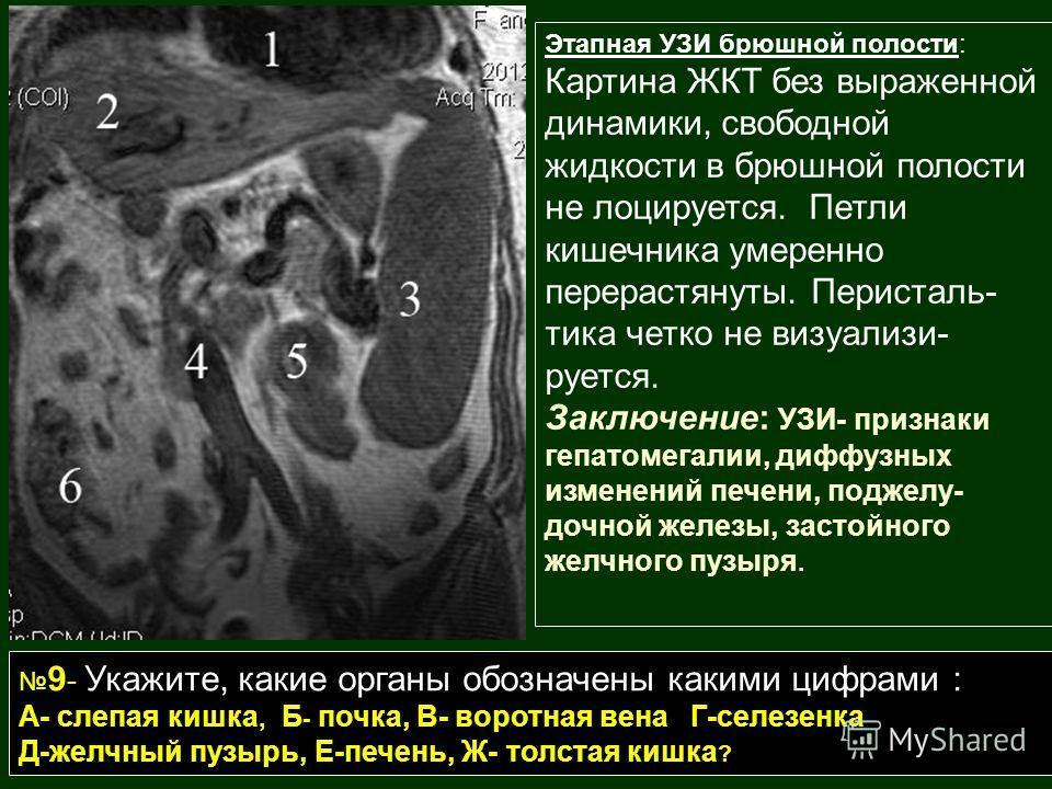 Этапная УЗИ брюшной полости: Картина ЖКТ без выраженной динамики, свободной жидкости в брюшной полости не лоцируется. Петли кишечника умеренно перерастянуты. Перисталь- тика четко не визуализи- руется. Заключение: УЗИ- признаки гепатомегалии, диффузн