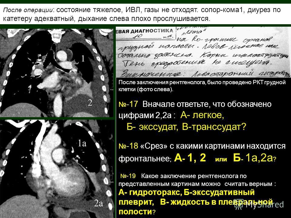 После заключения рентгенолога, было проведено РКТ грудной клетки (фото слева). -17 Вначале ответьте, что обозначено цифрами 2,2а : А- легкое, Б- экссудат, В-транссудат? -18 «Срез» с какими картинами находится фронтальнее ; А - 1, 2 или Б - 1а,2а ? -1