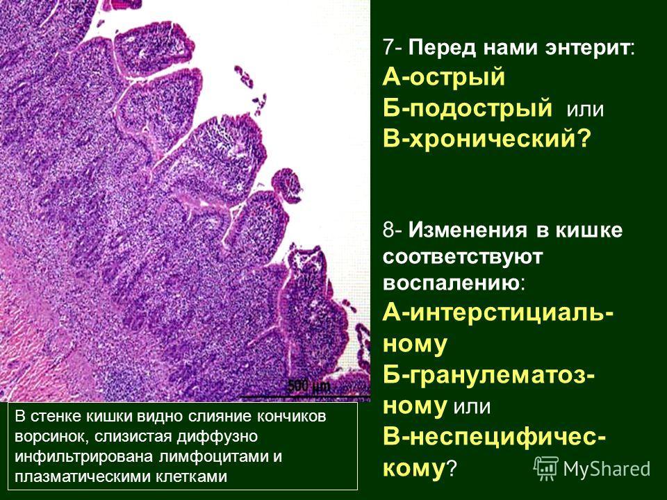 В стенке кишки видно слияние кончиков ворсинок, слизистая диффузно инфильтрирована лимфоцитами и плазматическими клетками 7- Перед нами энтерит: А-острый Б-подострый или В-хронический? 8- Изменения в кишке соответствуют воспалению: А-интерстициаль- н