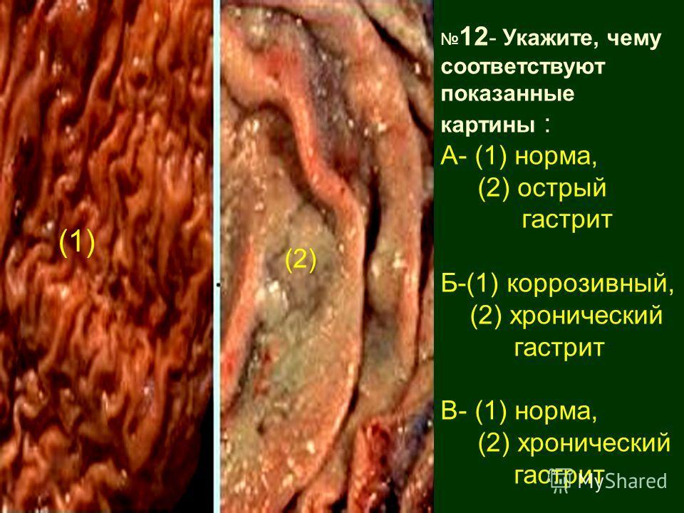 12 - Укажите, чему соответствуют показанные картины : А- (1) норма, (2) острый гастрит Б-(1) коррозивный, (2) хронический гастрит В- (1) норма, (2) хронический гастрит (1) (2)