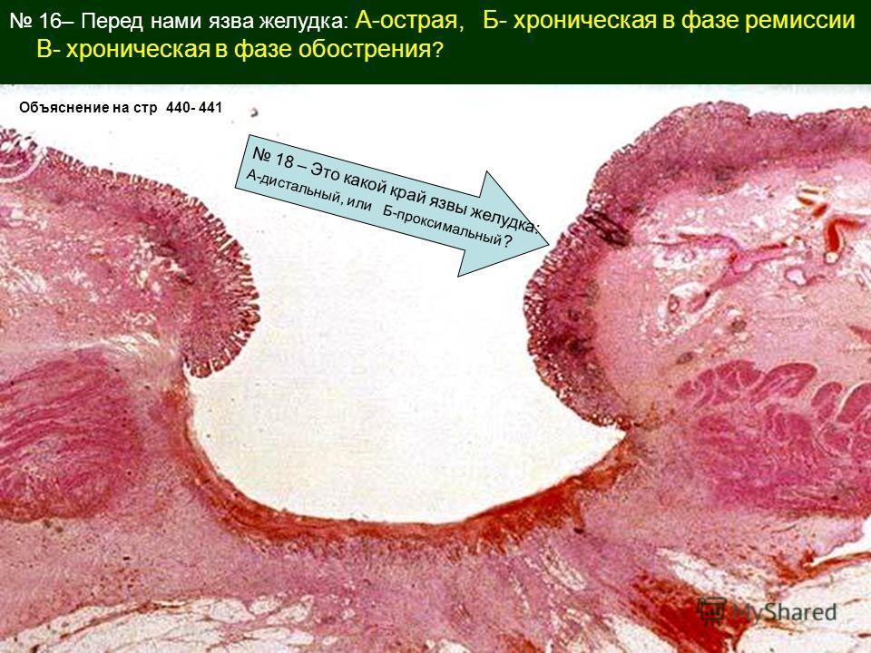 16– Перед нами язва желудка: А-острая, Б- хроническая в фазе ремиссии В- хроническая в фазе обострения ? Объяснение на стр 440- 441 18 – Это какой край язвы желудка: А-дистальный, или Б-проксимальный ?