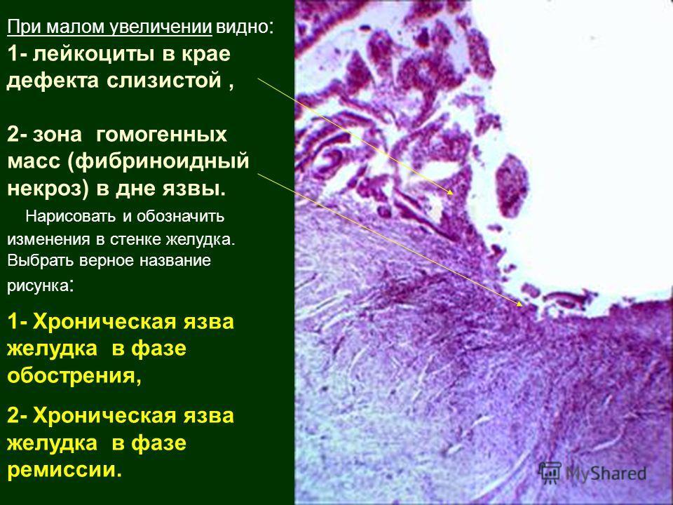 При малом увеличении видно : 1- лейкоциты в крае дефекта слизистой, 2- зона гомогенных масс (фибриноидный некроз) в дне язвы. Нарисовать и обозначить изменения в стенке желудка. Выбрать верное название рисунка : 1- Хроническая язва желудка в фазе обо