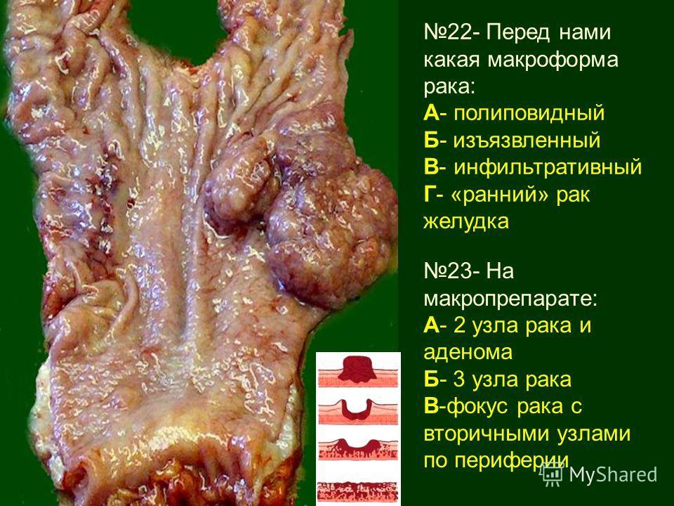 22- Перед нами какая макроформа рака: А- полиповидный Б- изъязвленный В- инфильтративный Г- «ранний» рак желудка 23- На макропрепарате: А- 2 узла рака и аденома Б- 3 узла рака В-фокус рака с вторичными узлами по периферии