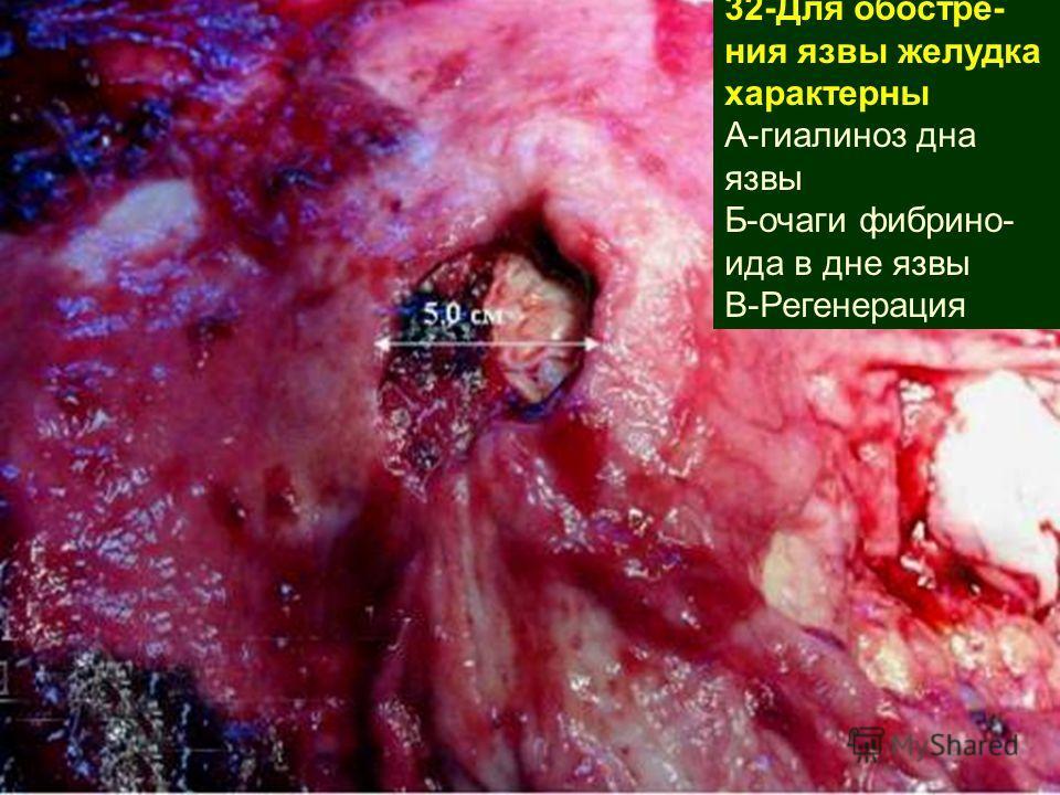 32-Для обостре- ния язвы желудка характерны А-гиалиноз дна язвы Б-очаги фибрино- ида в дне язвы В-Регенерация