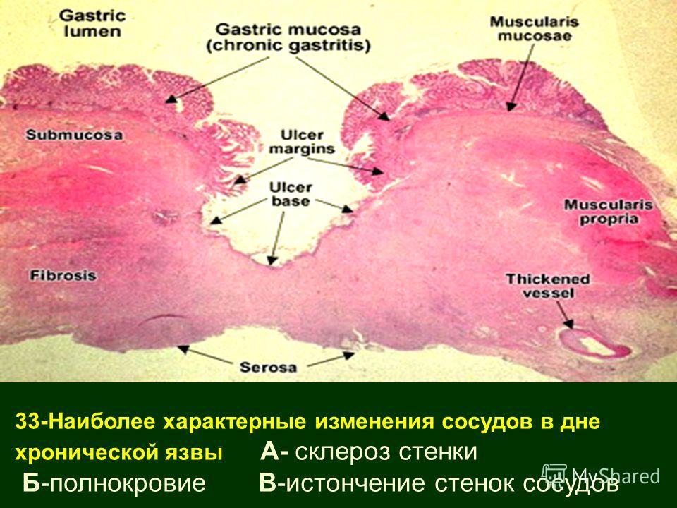 33-Наиболее характерные изменения сосудов в дне хронической язвы А- склероз стенки Б-полнокровие В-истончение стенок сосудов