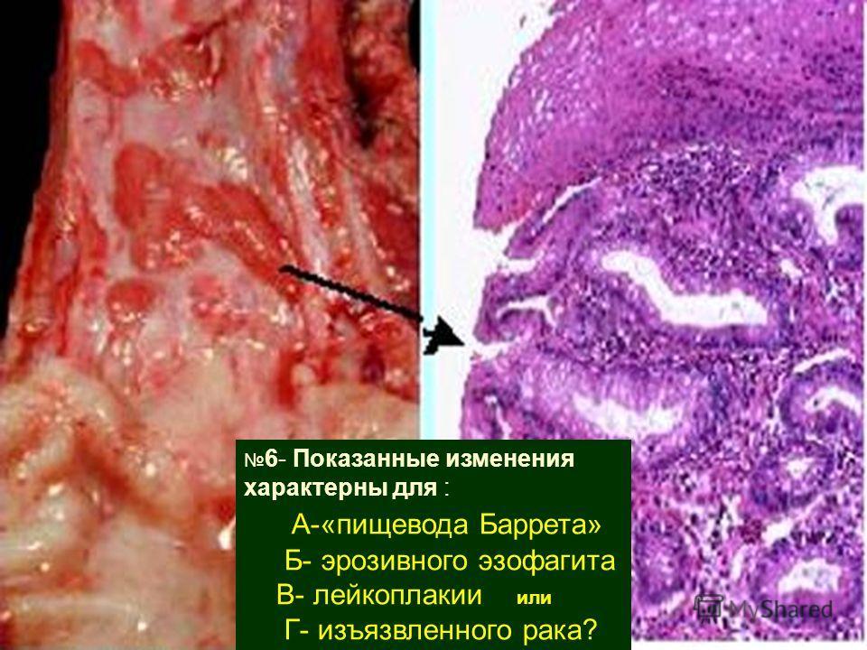 6- Показанные изменения характерны для : А-«пищевода Баррета» Б- эрозивного эзофагита В- лейкоплакии или Г- изъязвленного рака?