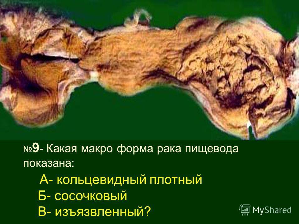 9 - Какая макро форма рака пищевода показана: А- кольцевидный плотный Б- сосочковый В- изъязвленный?