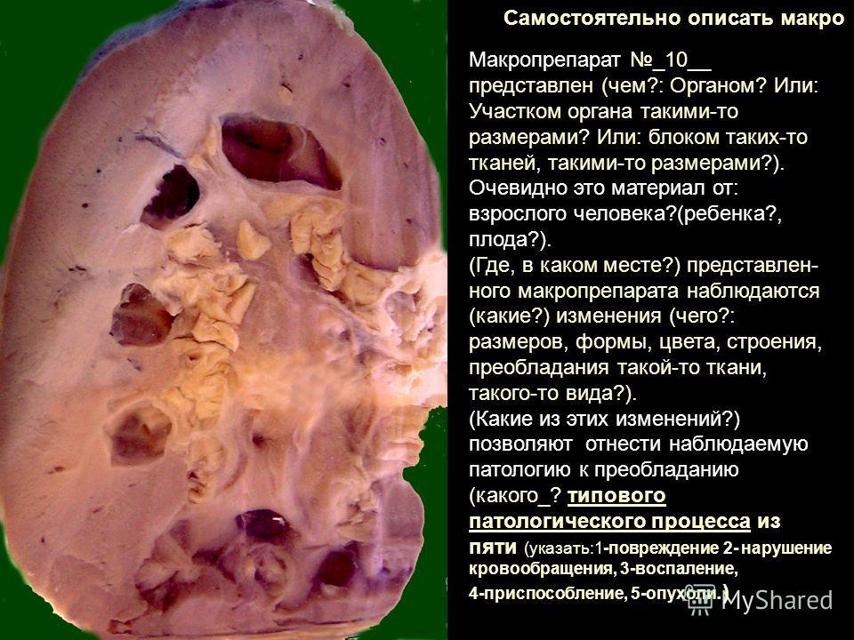 Самостоятельно описать макро Макропрепарат _10__ представлен (чем?: Органом? Или: Участком органа такими-то размерами? Или: блоком таких-то тканей, такими-то размерами?). Очевидно это материал от: взрослого человека?(ребенка?, плода?). (Где, в каком