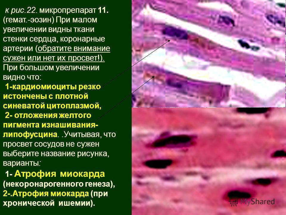 к рис.22. микропрепарат 11. (гемат.-эозин) При малом увеличении видны ткани стенки сердца, коронарные артерии (обратите внимание сужен или нет их просвет!). При большом увеличении видно что: 1-кардиомиоциты резко истончены с плотной синеватой цитопла