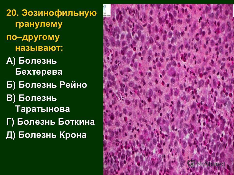20. Эозинофильную гранулему по–другому называют: А) Болезнь Бехтерева Б) Болезнь Рейно В) Болезнь Таратынова Г) Болезнь Боткина Д) Болезнь Крона