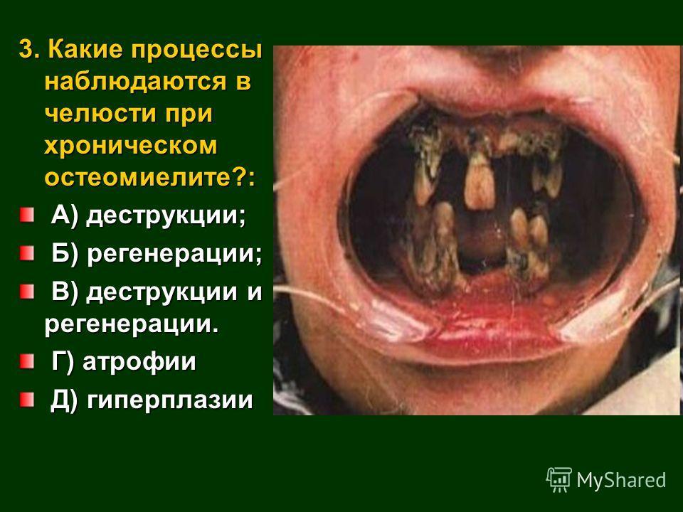 3. Какие процессы наблюдаются в челюсти при хроническом остеомиелите?: А) деструкции; А) деструкции; Б) регенерации; Б) регенерации; В) деструкции и регенерации. В) деструкции и регенерации. Г) атрофии Г) атрофии Д) гиперплазии Д) гиперплазии