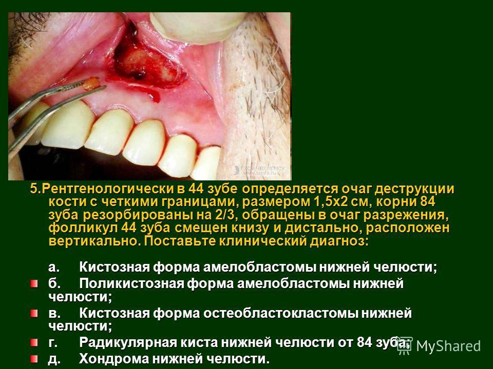 5.Рентгенологически в 44 зубе определяется очаг деструкции кости с четкими границами, размером 1,5x2 см, корни 84 зуба резорбированы на 2/3, обращены в очаг разрежения, фолликул 44 зуба смещен книзу и дистально, расположен вертикально. Поставьте клин
