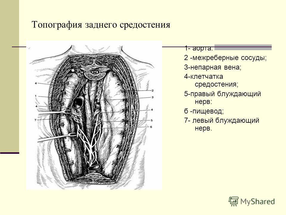 Топография заднего средостения 1- аорта: 2 -межреберные сосуды; 3-непарная вена; 4-клетчатка средостения; 5-правый блуждающий нерв: б -пищевод; 7- левый блуждающий нерв.