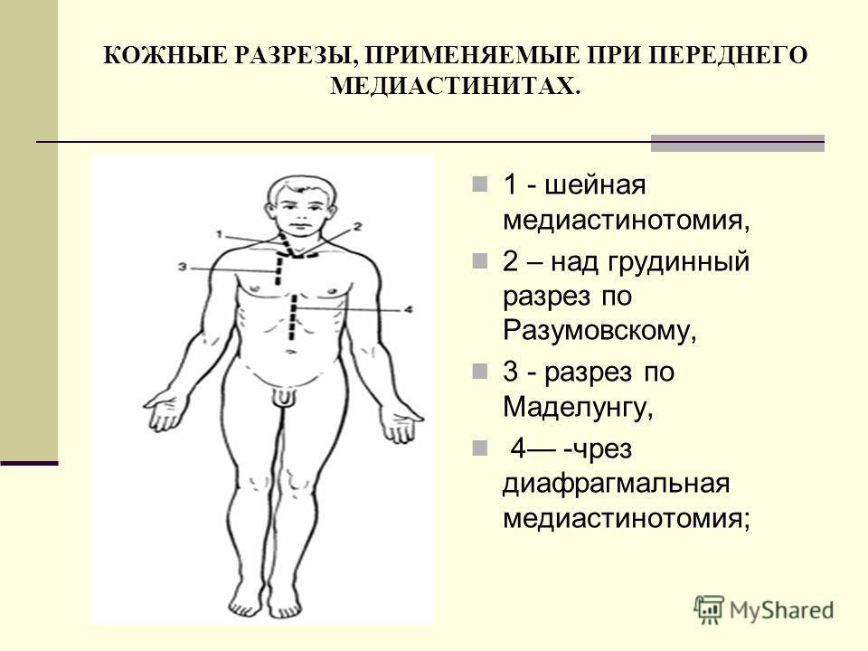 КОЖНЫЕ РАЗРЕЗЫ, ПРИМЕНЯЕМЫЕ ПРИ ПЕРЕДНЕГО МЕДИАСТИНИТАХ. 1 - шейная медиастинотомия, 2 – над грудинный разрез по Разумовскому, 3 - разрез по Маделунгу, 4 -чрез диафрагмальная медиастинотомия;