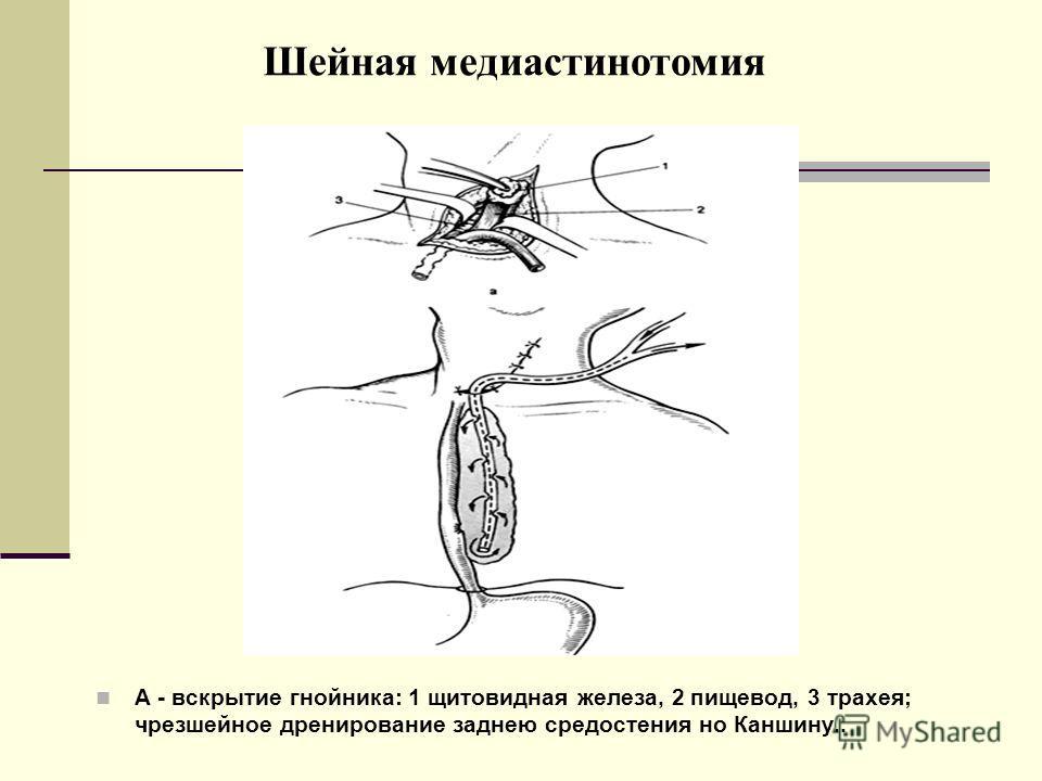 Шейная медиастинотомия А - вскрытие гнойника: 1 щитовидная железа, 2 пищевод, 3 трахея; чрезшейное дренирование заднею средостения но Каншину..