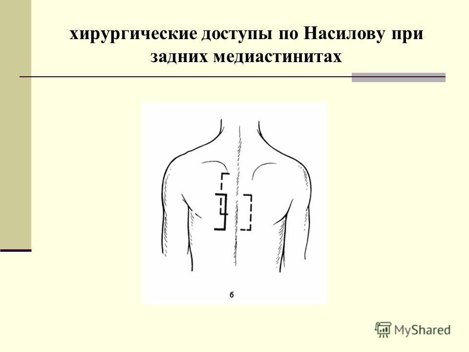 хирургические доступы по Насилову при задних медиастинитах