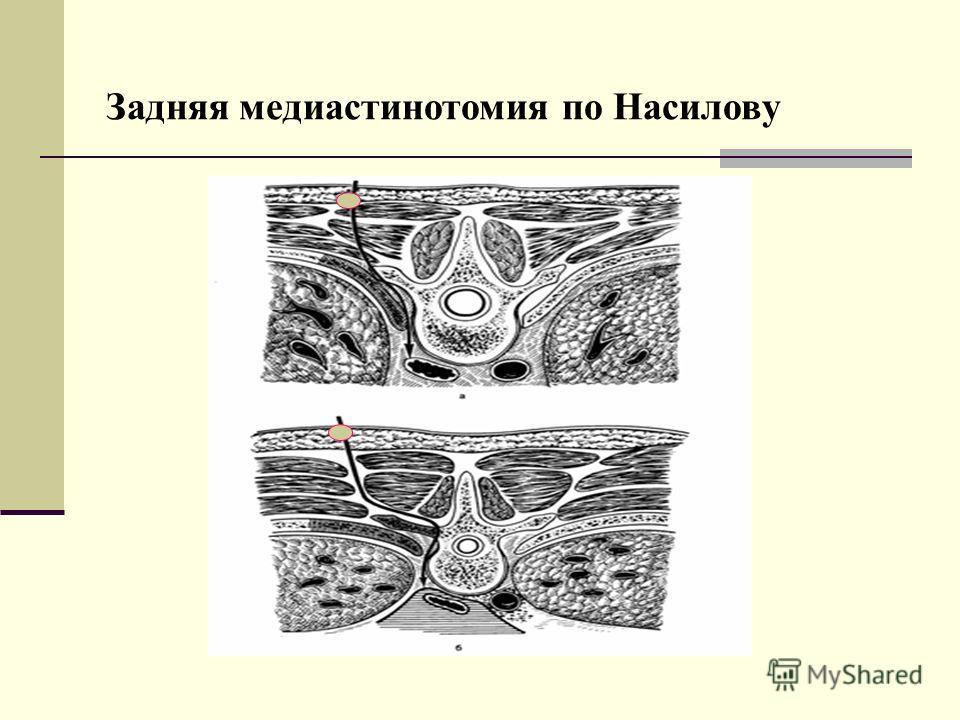 Задняя медиастинотомия по Насилову