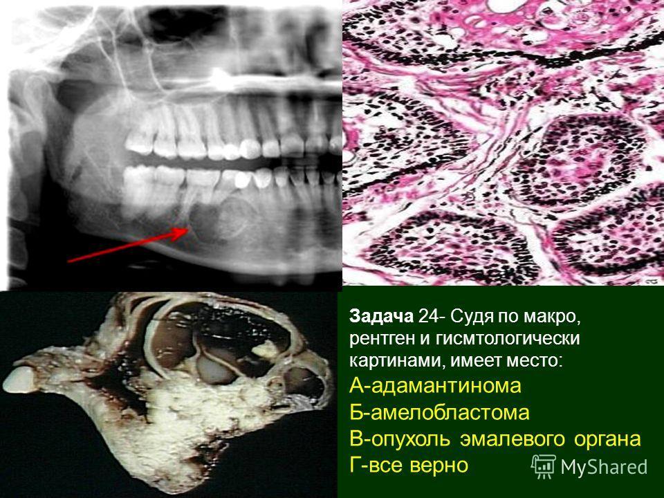 Задача 24- Судя по макро, рентген и гисмтологически картинами, имеет место: А-адамантинома Б-амелобластома В-опухоль эмалевого органа Г-все верно