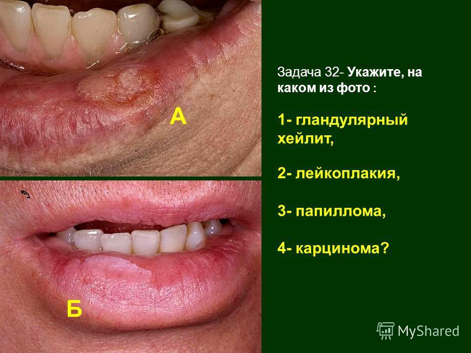 Задача 32- Укажите, на каком из фото : 1- гландулярный хейлит, 2- лейкоплакия, 3- папиллома, 4- карцинома? А Б